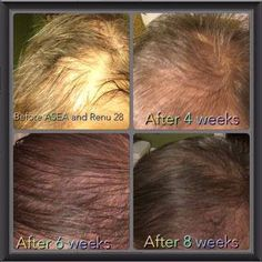 RENU 28 IS CHANGING LIVES EVERY DAY Look at these amazing results. To purchase your RENU 28 today! VISIT: www.redoxreaction.teamasea.com