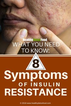 symptoms of insulin resistance How To Treat Diabetes, Prevent Diabetes, How To Lower Glucose, Lower Glucose Levels, A1c Levels, Lower Blood Sugar Naturally, Reduce Blood Sugar, Diet