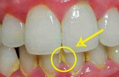 Eenbeetje tandplak laten verwijderen met een dure tandartsbehandeling is nu niet meer nodig. Volg deze tip en je bent er in ee...
