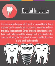 Get a healthy, gorgeous smile with dental implants. Learn about affordable implants and how they can transform your smile from Dental Sedation and Implant Center Humor Dental, Dental Hygiene School, Dental Facts, Dental Hygienist, Dental Implants, Implant Dentistry, Smile Dental, Dental Care, Dental Health