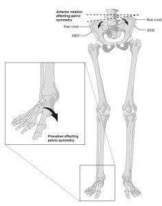 Foot pronation and hip asymmetry