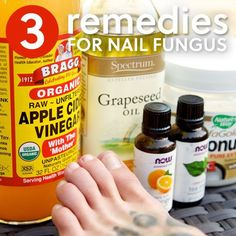 3 Simple Home Remedies for Toenail Fungus- get rid of your toenail fungus at home.