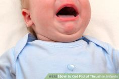 Image titled Get Rid of Thrush in Infants Step 7