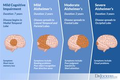 Dementia Symptoms, Alzheimer's And Dementia, Dementia Types, Stress Symptoms, Disease Symptoms, Alzheimer's Prevention, Brain Healthy Foods, Lab, Ketone Bodies