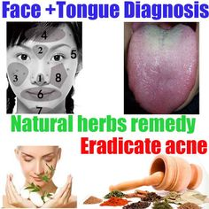 Chinese natural remedy for acne-chinese herbal medicine for acne The best acne treatment theacnecode.com