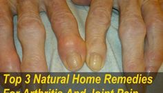 Completely Heal Any Type Of Arthritis - Arthritis Remedies Hands Natural Cures - 3 Natural Home Remedies for Arthritis Joint Pain Arthritis Remedies Hands Natural Cures Completely Heal Any Type Of Arthritis - Arthritis Hands, Yoga For Arthritis, Rheumatoid Arthritis Treatment, Arthritis Relief, Types Of Arthritis, Pain Relief, Arthritis Exercises, Psoriasis Arthritis, Prevent Arthritis