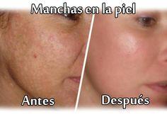Manchas en la piel, consejos para eliminarlas   Cuidar de tu belleza es facilisimo.com