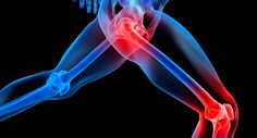 5 Natural Remedies Against Pain in the Joints