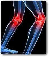 la rodilla con acido urico elevado alimentos que no se pueden comer acido urico exame de sangue acido urico para que serve
