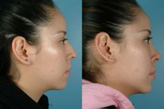 nose-surgery-tahoe http://www.maasclinic.com/face/nose-surgery/#