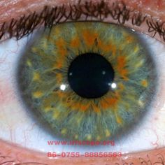 discolored patch on iris - Google Search