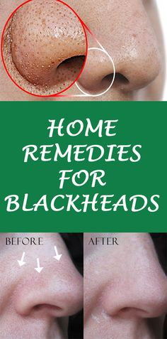 Get rid of blackheads and whiteheads smartly.Top effective and working blackhead removal remedies.tried and tested ways to get rid of pesky blackheads. Blackhead Remedies, Blackhead Remover, Blackhead Mask, Natural Skin, Natural Health, Natural Facial, Natural Vitamins, Home Remedies, Natural Remedies