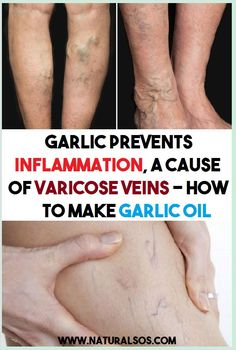 Garlic Prevents The Inflammation That Cause Varicose Veins Women's Mental Health, Health Facts, Oral Health, Health Tips, Gut Health, Health Fitness, Positive Thinking Exercises, Varicose Veins Causes, Tongue Health