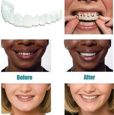MAGIC Teeth Brace - Bigsuprise Veneers Teeth, Safe Cosmetics, Teeth Braces, Stained Teeth, Teeth Care, Tips Belleza, Teeth Whitening, Dentistry, Adulting