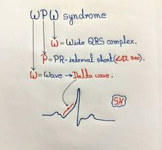 WPW syndrome