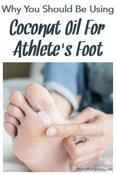 No one want's Athlete's foot. It can be itchy, painful, and embarrassing. That's why you should be using coconut oil for Athlete's Foot! Hybrid Rasta Mama shares why it works so well and tells you how to use it. Young Living Oils, Young Living Essential Oils, Itchy Feet Remedy, Warts Remedy, Foot Remedies, Oil Uses, Feet Care, Pedi, Coconut Oil