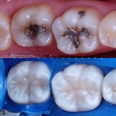"2,370 Me gusta, 15 comentarios - Dentistry Forum (@dentistry_forum) en Instagram: ""Case via @world_smiles_club - Case from @abalaksana - . Direct restoration Micerium ENA HRi . . . .…"""