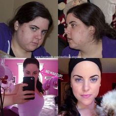 | Mellissa Alepins | before and after 5 years ~ high raw plant based vegan ~