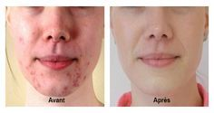 Free Presentation Reveals 1 Unusual Tip to Eliminate Your Acne Forever and Gain Beautiful Clear Skin In Days - Guaranteed! How To Cure Pimples, Acne And Pimples, Honey On Pimples, Pimple Scars, How To Get Rid Of Acne, Acne Treatment, Clear Skin, Skin Care Tips, Health And Beauty