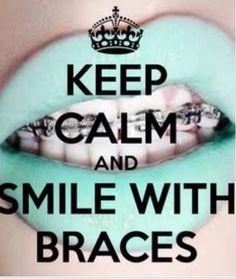 lol hiya guys!! I'm pinning this because I have braces now!!