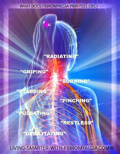 """Unlike the well established 18 """"tender points"""", a map of a patient's fibromyalgia trigger points might often look like a war zone!"""