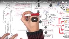 IBD – Pathophysiology, Complications Illustrated #IrritableBowelDiseaseNews