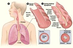 Take time to understand Asthma!