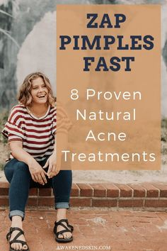 How To Zap Pimples Fast- 8 Proven Natural Acne Treatments - Acne Treatment Back Acne Treatment, Natural Acne Treatment, Skin Care Treatments, Skin Care Remedies, Acne Remedies, Natural Remedies, Olive Oil Skin, Skin Oil, Teen Boys