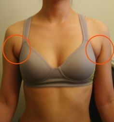 get rid of armpit fat for those strapless dress occasions!