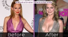 Melora Hardin's Boob Job - Jan from The Office Rumors Are True? Check out the pics for yourself and we'll let you decide whether they've had plastic surgery or not! Marilu Henner, Melora Hardin, Melissa Rauch, Under The Knife, Celebrity Plastic Surgery, Emilia Clarke, Beautiful Celebrities, The Office, Bangs