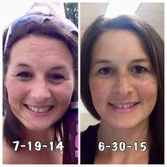 It's the same 30 year old gal, 1 year later. Crazy, right? The 2014 pic is before using quality skin care. The 2015 pic is after 1 year of Rodan & Fields products - Redefine and Eye Cream. Simple, quality skin care that can take off years. Rodan Fields Skin Care, Rodan And Fields Redefine, Redefine Regimen, Skin Care Regimen, Look At Her Now, Wrinkle Remover, Acne Treatment, Good Skin, Sensitive Skin