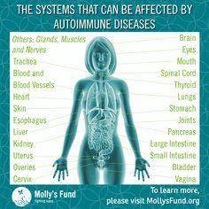Psoriatic Arthritis - What is it? Thyroid Disease, Lyme Disease, Autoimmune Disease, Thyroid Health, Mental Health, Chronic Fatigue, Chronic Illness, Chronic Pain, Cidp