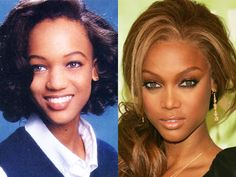 Tyra Banks before and after nose job plastic surgery? Tyra Banks is a tremendously successful American model, television host/personality an...