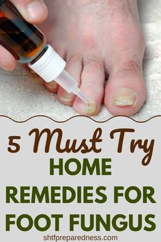 If you suffer from foot fungal infection, you should try one of these home remedies for foot fungus as soon as you see signs of it. 5 must try home remedies for foot fungus. Foot Remedies, Cold Home Remedies, Natural Health Remedies, Natural Cures, Natural Healing, Herbal Remedies, Natural Foods, Holistic Healing, Natural Skin