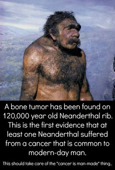 This discovery of a fibrous dysplasia predates previous evidence of this tumor by well over years. Prior to this research, the earliest known bone cancers occurred in samples approximately. Biological Anthropology, Prehistoric Man, Early Humans, Human Evolution, Mystery Of History, Medical History, Before Us, Ancient Civilizations, Primates