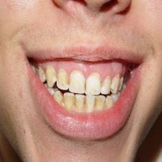 Top 6 Home Remedies To Get Rid Of Yellow Teeth