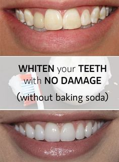 Whiten teeth fast and with no damage