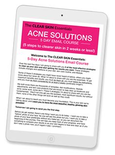 Got breakouts or adult acne? Discover 5 most effective (and unknown) diet & natural skin care strategies to get clearer skin in 2 weeks or less. Click through to sign-up now, it free!