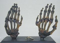 Polydactyly of the hands