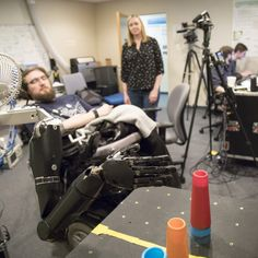 A prosthetic arm that can feel wins the first STAT March Madness Editor's Choice award