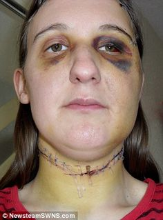 Some of the injuries suffered by Ms Allman