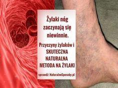 NaturalneSposoby.pl-zylaki-nog-przyczyny-zdjecia-domowy-sposob-na-zylaki-naturalny-przepis Polish Recipes, Smoothies, Beauty Hacks, Herbs, Blog, Health, Turmeric, Smoothie, Beauty Tricks