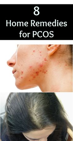 Some simple home remedies and lifestyle changes can help manage the symptoms of PCOS and reduce complications.