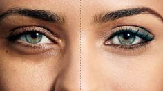 Best under eye concealer for dark circles and puffy eyes. How to get rid of dark circles? Get rid of puffy eyes. Remedies for dark circles & puffy eyes. Eye Cream For Dark Circles, Reduce Dark Circles, Dark Circles Under Eyes, Dark Under Eye, Creme Anti Age, Anti Aging Cream, Essential Oils Dark Circles, Sunken Eyes, Dark Circle Remedies
