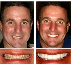 This patient got a great new smile with porcelain veneers and crowns.