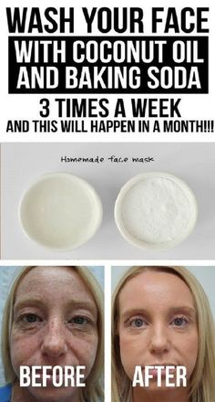 Wash Your Face with Coconut Oil and Baking Soda 3 Times a Week and This Will Happen in a Month! Wash Your Face with Coconut Oil and Baking Soda 3 Times a Week and This Will Happen in a Month! Baking Soda Face Wash, Baking Soda Mask, Baking Soda Shampoo, Baking Soda Scrub, Baking Soda Facial, Baking Soda Under Eyes, Baking Soda For Skin, Baking Soda Beauty Uses, Face Baking