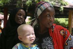 Albinos are hunted for body parts in Tanzania - The National
