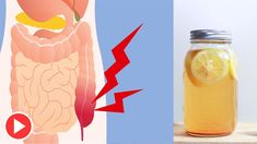 How To Do Natural Colon Cleanse At Home | Colon Cleanse Drink Recipe | Constipation - Remedies One