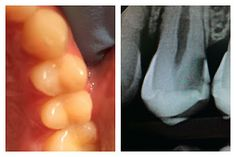 This is why your dentist takes x-rays. You can see by the photo that the teeth look fine. But when the radiograph is taken you can see an interproximal cavity in-between the teeth on the right side of this upper bicuspid tooth. The bacteria that eat your teeth Streptococcus mutans are facultative gram negative anaerobic bacteria that cannot live in oxygen which is why they grow best in-between the teeth where there is no air containing oxygen and can only be cleaned with dental floss.