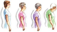 4 Exercises That Prevent A Hunchback...we'll see about that. I'm genetically predisposed to this.